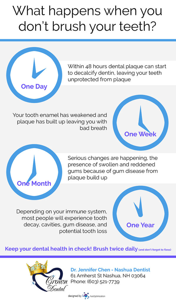 Infographic showing a timeline of what happens when you don't brush your teeth.