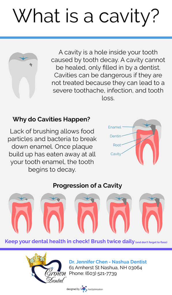 What is a cavity Infographic