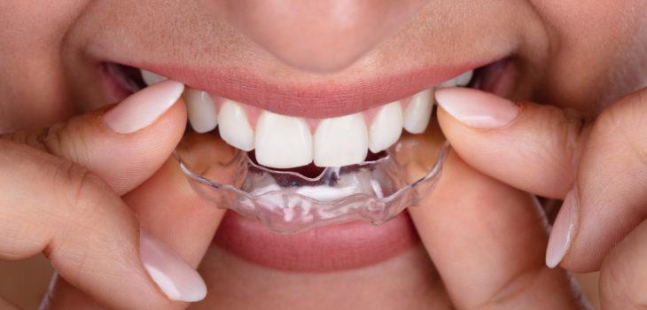 Woman Putting Transparent Aligner In Teeth